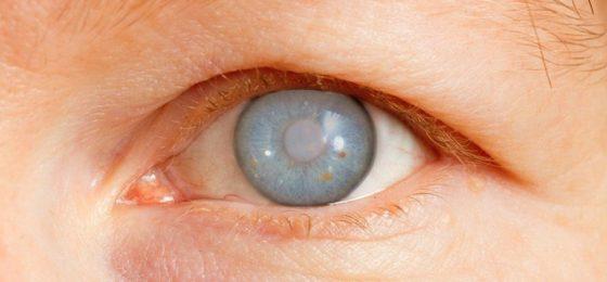 Признаки глаукомы у пожилых людей